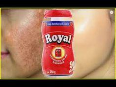 Pele de Bebê em 3 DIAS! Use Pó Royal Para Remover Manchas e Rugas da Pele! (INÉDITA) - YouTube