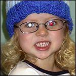 Retinoblastoma: DIAGNOSIS