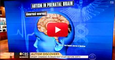 #Autism May Begin During Pregnancy? This Could Change How We Understand Autism. | The Autism Site Blog