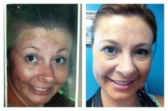 This is the result after 6 months of using our Reverse Regime! If you have sun damage or brown spots and want to get rid of them message me. You will love Reverse! http://ift.tt/1Sy4oRG #takecareofyourskin #nomorefoundation #rodanandfields by shannonbarbour6