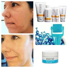 Reverse damaged skin from years of baking in the sun and melasma (pregnancy mask).
