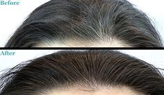 Grease your hair with these natural creams to get rid of gray hair.