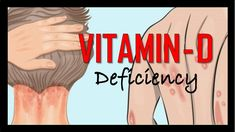 8 Signs and Symptoms of Vitamin D Deficiency you need to Know