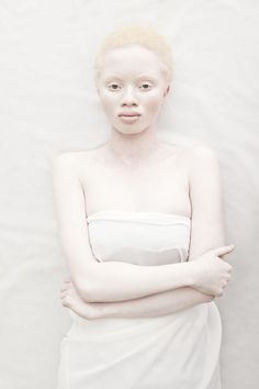 Albino people are often described as magical and persecuted because of that fact. These pictures are so beautiful we wanted to celebrate them and there hair