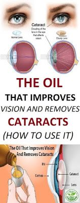 THE OIL THAT IMPROVES VISION AND REMOVES CATARACTS (HOW TO USE IT)
