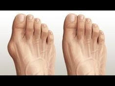 Health And Wellness, Health Tips, Health Fitness, Home Remedies, Natural Remedies, Bunion Remedies, Foot Reflexology, Natural Medicine, Excercise