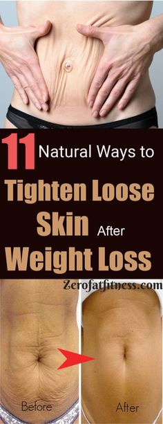 Natural Remedies To Lose Weight How to Tighten Loose Skin after Weight Loss - 11 Best Natural Ways? Try these best 11 home remedies to get rid of loose skin on stomach, arms, neck and face without surgery. Tighten Stomach, Tighten Loose Skin, Lower Stomach, Skin Bumps, Loose Belly, Detox, Gewichtsverlust Motivation, Burn Belly Fat Fast, New Shape
