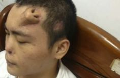 Apesar da sua aparência talvez bizarra, um homem na China tem um novo nariz a crescer na sua testa. Tal facto constitui uma técnica bastante comum reconstrução do nariz.
