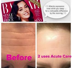 Rodan & Fields Acute Care  BEFORE & AFTER What are you waiting for?  Fill your wrinkles while you sleep, no needles required! Check it all out: https://vickiemacfarlane.myrandf.com