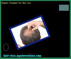 Organic Treatment For Hair Loss 173252 - Hair Loss Cure!