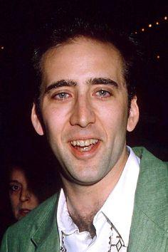 Nicolas Cage Before  www.prosmiles.co.uk