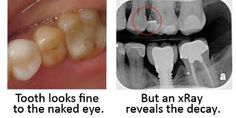 the important oral x rays - Google Search
