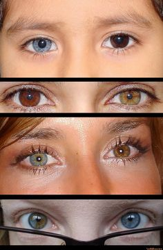 Heterochromia is so cool, Wicked.