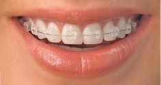 Promocja! Aparat ortodontyczny stały kryształowy tylko 1 999 zł za 1 łuk.  Więcej informacji na naszej stronie: http://www.martomedica.pl/cennik