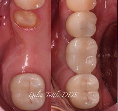 Dentaltown - Failing bridge replaced by implants. Guided Implantology and soft tissue management