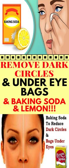 Baking soda is amazing for so many different things. It can be used as a beauty regimen, cleaning, medication, and even shampoo. In fact, baking soda shampoo is the best possible concoction to shampoo . Natural Cures, Natural Skin, Natural Beauty, Natural Life, Peeling Maske, Baking Soda And Lemon, Beauty Hacks For Teens, Baking Soda Shampoo, Dark Circles Under Eyes