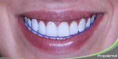 Línea de la sonrisa Veneers Teeth, Dental Veneers, Perfect Teeth, Perfect Smile, Dental Aesthetics, Dental Anatomy, White Teeth, Hair Beauty, Lips