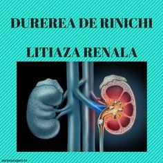 Calculi renali (pietre la rinichi) sunt depozitele de minerale si saruri din rinichi. Afecteaza tractul urinar, de la rinichi pana la vezica urinara. Good To Know, Health, Health Care, Healthy, Salud