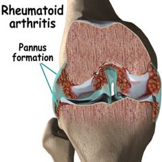 Common Symptoms Of Rheumatic Arthritis
