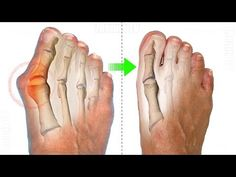 The Only Technique That Helps To Get Rid Of Bunions With In 2 Months! the results are amazing! - YouTube