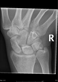 Os triangulare | Radiology Case | Radiopaedia.org