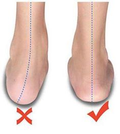 Load image into Gallery viewer, Silicone Hammer Toe Corrector Daily toe pin finger protector Hammer Toe Correction, Posture Correction, Gel Toe Separators, Bunion Relief, Bow Legged, Gel Toes, Muscle Imbalance, Ingrown Toe Nail, Feet Care