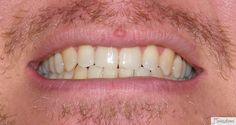 After application of teeth whitening gel Wow . its amazing what you can find while searching out images for porcelain veneers and Porcelain Veneers, Dental Care, Teeth Whitening, Doctors, Searching, Amazing, Top, Image, Tooth Bleaching