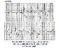 ECG Learning Center - An introduction to clinical electrocardiography Tutorial Sites, Study Guides, Study Help, Learning Centers, Clinic, Facts