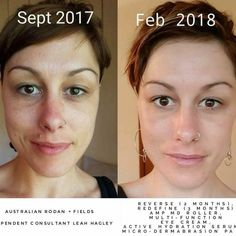 This beautiful #aussie, Leah, is a walking billboard for her new global skincare business She partnered with R+F and uses the #1 premium anti-aging skincare products in North America! Gorgeous results, right?! #australia #passiveincome #residualincome #smartbusiness