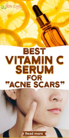 Looking for the best vitamin c serum for acne scars? We have hand picked some of the best products for you. Read more about best Vitamin C serum at theskincarereviews.com. #vitamincserum #acne Best Vitamin C Serum, Best Serum, Scar Remedies, Skin Care Remedies, Best Acne Products, Skin Products, Beauty Products, Face Care Routine, Clear Skin Tips
