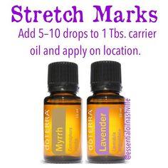 Use lavender and myrrh essential oils for stretch marks. Myrrh Essential Oil, Natural Essential Oils, Essential Oil Blends, Natural Oils, Going Natural, Natural Health, Lavender Oil Benefits, Essential Oils For Pregnancy, Pregnancy Oils