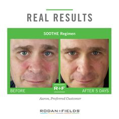 """My wife is a Rodan + Fields® Consultant, and she introduced me to the SOOTHE Regimen. I now use it twice a day and it has significantly reduced my visible redness and dry patches."" – Aaron Stanford, R+F Preferred Customer A new year and a new YOU, let's get started on your journey to great skin today!! kathycaffray@gmail.com 321.299.4229"