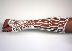 3D-Printing Technology Produces Modern Exoskeletal Cast - My Modern Metropolis