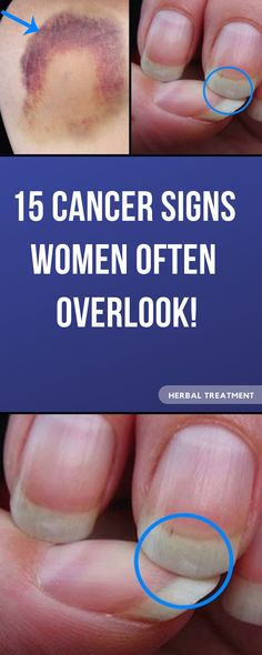 15 CANCER SIGNS WOMEN OFTEN OVERLOOK! Cancer is the most common cause of death nowadays! Despite the high general awareness, some studies have shown that most women tend to overlook these common symptoms of cancer! Signs Of Lung Cancer, Lung Cancer Symptoms, Oral Cancer, Cancer Sign, Cervical Cancer, Health Facts, Health Tips, Endometrial Cancer