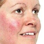 Rosácea Tratamiento Natural para la piel - Síntomas