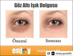 #Repost @enjoy.guzellik with @repostapp ・・・ Göz altı ışık dolgusu, göz altındaki çöküklük ve mor halka görünümünü düzeltir. Doktorunuzun önereceği uygun göz çevresi kremiyle etkinin kalıcı olması sağlanır. Bu uygulamayla sağlıklı ve ışıl ışıl bir göz çevresine sahip olabilirsiniz.  #enjoyguzellik #botox #dolgu #mezoterapi #soguklipoliz #microplus #lenfdrenaj #medikaleayakbakimi #manikur #proteztirnak #elspabakim #kalicioje #ciltanalizi #ciltbakimi #profesyonelmakyaj #kalicimakyaj…