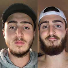 Glad I didnt give in to shaving Give your patchy beard a chance fellas! This is about a 6 month difference. Grow A Thicker Beard, Thin Beard, Beard Fade, Beard Look, Short Beard, Goatee Styles, Hair And Beard Styles, Beard Styles For Men, Beard Before And After