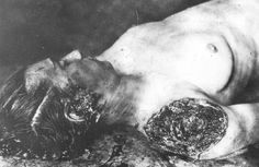 The photo Kleszczyńska killed by Ukrainian Insurgent Army. The body bears visible signs of torture, including browning facial area and cut off, shoulder, Podjarków, 16 VIII 1943 r. [From the collection of the Mausoleum of Michniów].