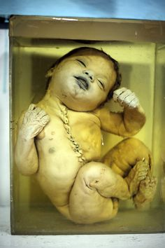 Fetal specimens collected from gas victims are hauntingly on display in the Gandhi Medical College in #Bhopal #India. www.bhopal.org #health #care #chemical #genetics #dioxins #us #pesticide #factory #water #disaster #children #disabled #Greenpeace