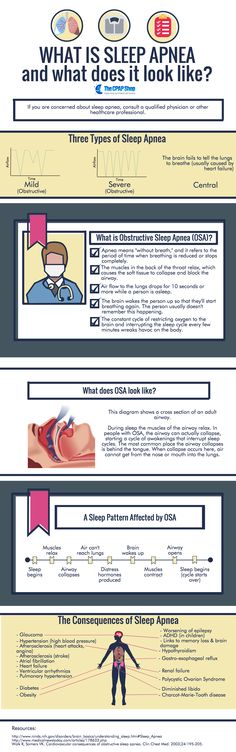 What is Sleep #Apnea and What Does It Look Like? - Don't risk your life + health and treat your #Sleep #Apnoea