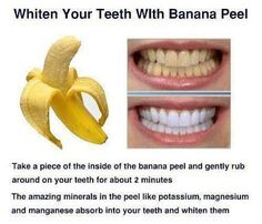 Yes banana peels will whiten your teeth better than almost anything else you can try. Banana peels and activated charcoal are the best things for getting your teeth the whitest they will ever be. Rub the banana peel on your teeths exposed surfaces. Teeth Whitening Remedies, Natural Teeth Whitening, Natural Toothpaste, Beauty Care, Diy Beauty, Fashion Beauty, Beauty Stuff, Beauty Ideas, Teeth Care