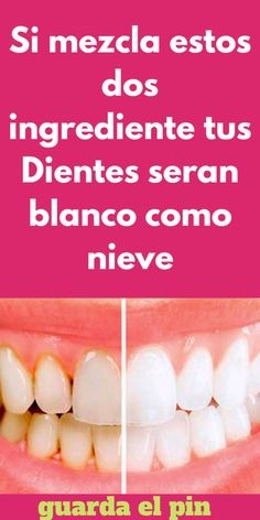 Si mezcla estos dos ingrediente tus Dientes seran blanco como nieve - Woman To Power Health And Wellness Quotes, Wellness Tips, Health And Nutrition, Health Fitness, Natural Beauty Tips, Natural Cures, Natural Skin, Tips Belleza, Dental Care