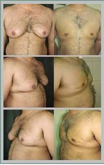 Gynecomastia is the term used for abnormal enlarged male breast. It is a common condition and affects more than of the males. Male breast correction surgery is the way out to get rid of the fatty tissues/glands and get a flat and masculine chest. Plastic Surgery, Rid, Conditioner, Breast, Flat, Bass, Flat Shoes