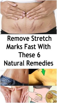 Remove Stretch Marks Fast With These 6 Natural Remedies Stretch marks are narrow streaks or lines that occur on the surface of the skin when it is stretched.
