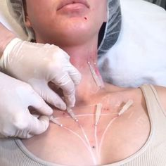 Hold on by a thread... Get a non surgical #facelift in #minutes & its bye-bye to sagging skin on the neck, chin, & jawline ✨ Get threaded for #valentines & give yourself some #love #treatyoself In Spa: Sugar Thread Lift Non- Surgical face lift in minutes? Hang On because of a thread..a PDO Nova Thread that is ... Nova Polydioxanone Threads- we have worked out a matrix system using these absorbable sutures that works beautifully in minutes .. add lift without the Volume