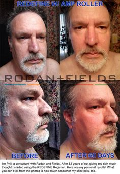 Guys - you have skin too and it isn't getting any younger!  Start taking care of it today.  Message me to find out how.  https://lisaanderson1.myrandf.com