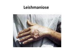 Leishmaniose. Protozoário causador. A leishmaniose é uma doença não contagiosa…