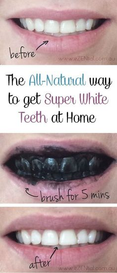 The All-Natural way to get super white teeth at home - Healthy Life Healthy World Teeth Whitening That Works, Activated Charcoal Teeth Whitening, Natural Teeth Whitening, Teeth Whiting At Home, Teeth Bleaching, Stained Teeth, Super White, White Teeth, Oral Hygiene