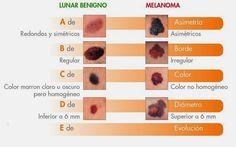 TU SALUD: Recomendaciones sobre los lunares en la piel