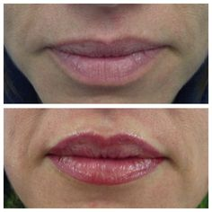Lip definition and symmetry regained with a natural, soft lip blush.
